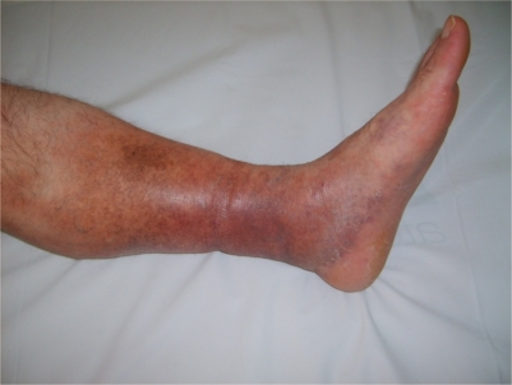 Superficial vein thrombosis or phlebitis