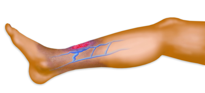 Vein Clinic in Rockville, MD: New Article