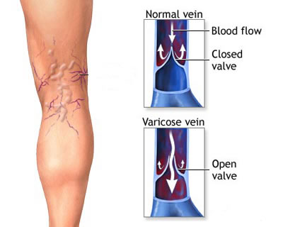 Causes, symptoms and consequences of varicose veins