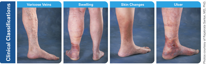 About Vein Disease