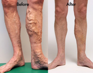 Varicose Vein Doctor in Rockville: Arterial vs. Vein Disease
