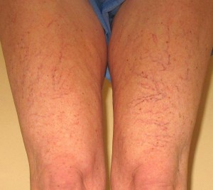 Spider Veins (Before)
