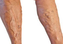 Vein Clinic in Rockville, MD: Vein Treatment for Everyone