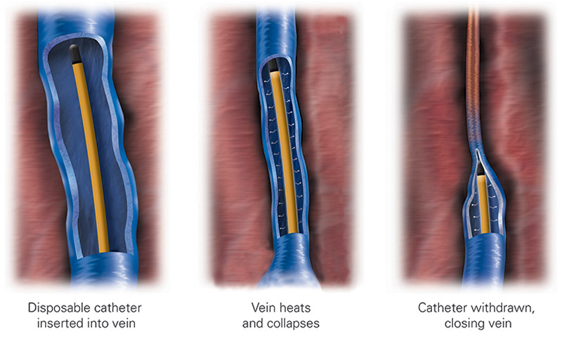 Endovenous Radiofrequency Ablation - Venefit Procedure